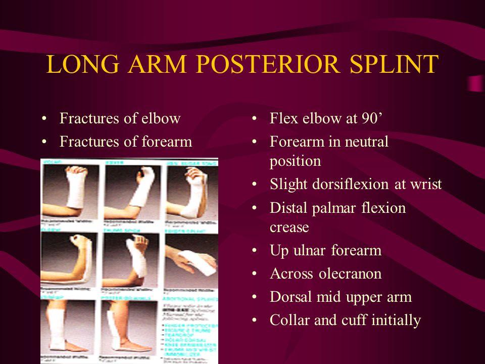 LONG ARM POSTERIOR SPLINT