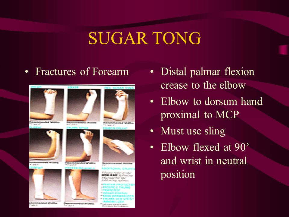 SUGAR TONG Fractures of Forearm