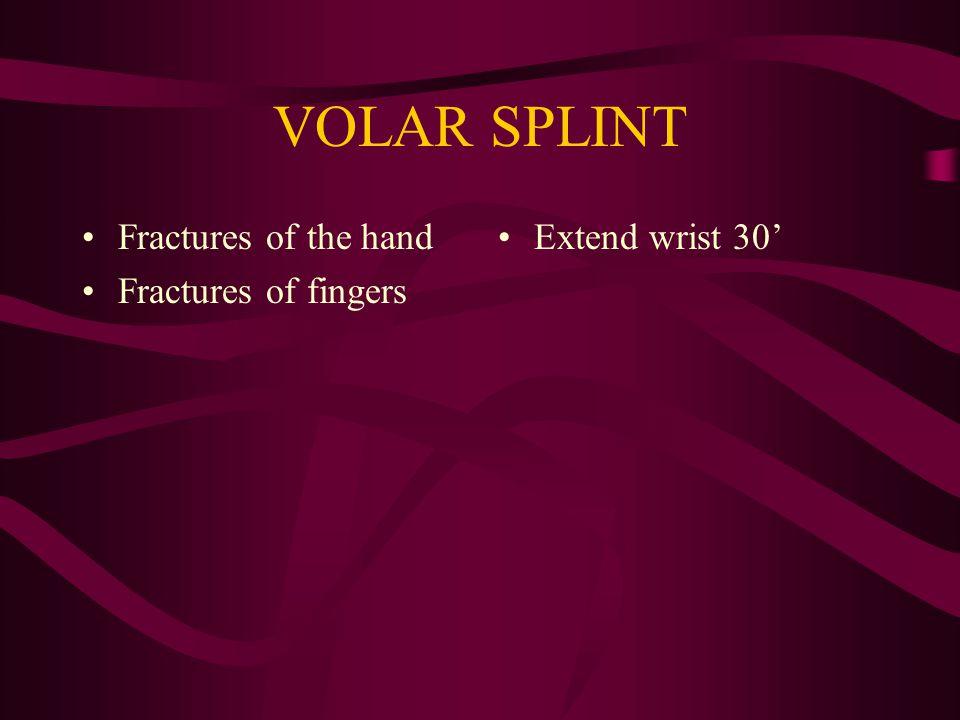VOLAR SPLINT Fractures of the hand Fractures of fingers