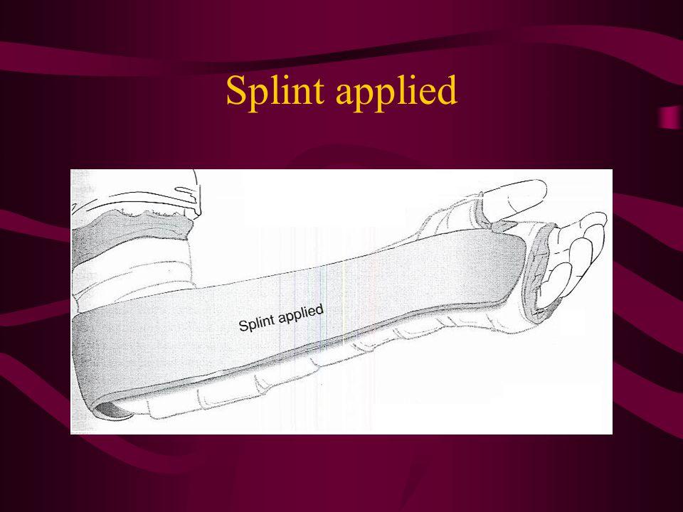 Splint applied
