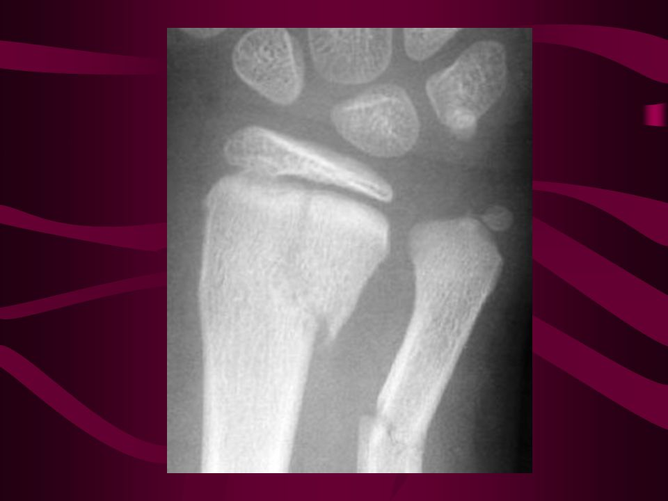 Salter Harris II Transverse fracture of Ulna with 15 degrees angulation apex radial (lateral) Most common.
