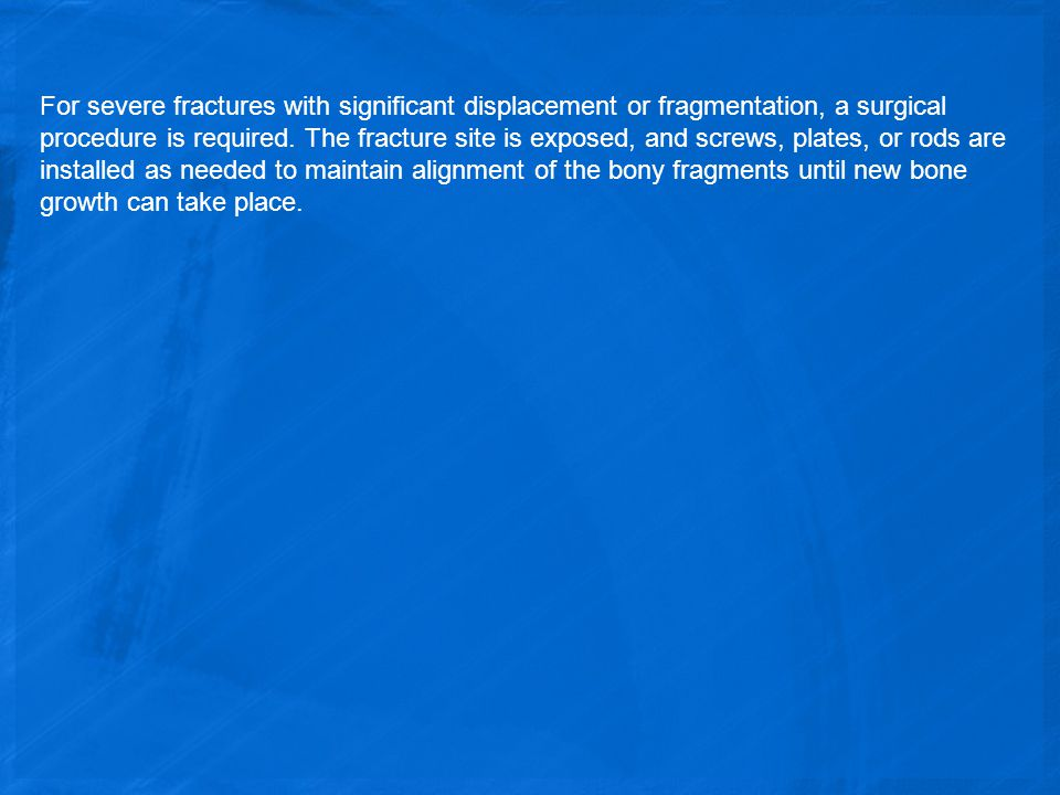 For severe fractures with significant displacement or fragmentation, a surgical procedure is required.