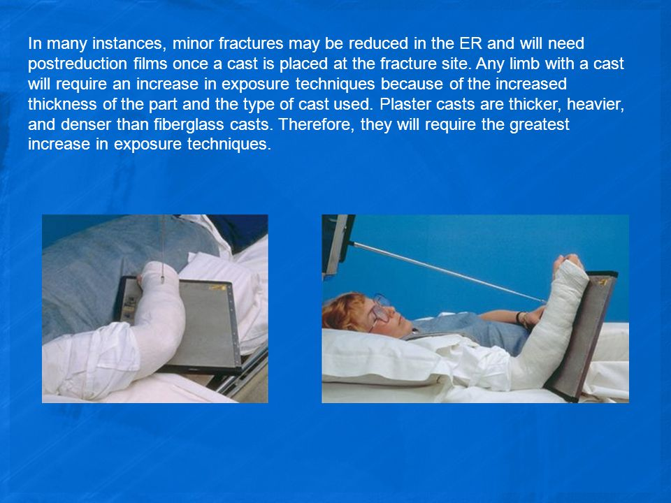 In many instances, minor fractures may be reduced in the ER and will need postreduction films once a cast is placed at the fracture site.