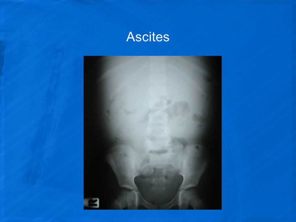 Ascites