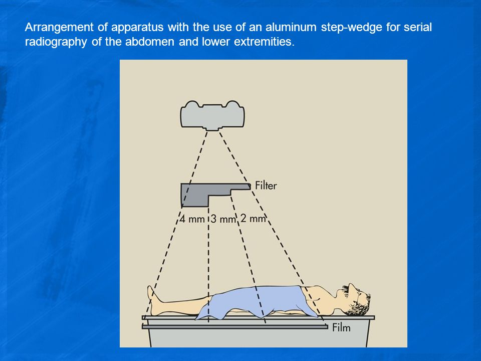 Arrangement of apparatus with the use of an aluminum step-wedge for serial radiography of the abdomen and lower extremities.