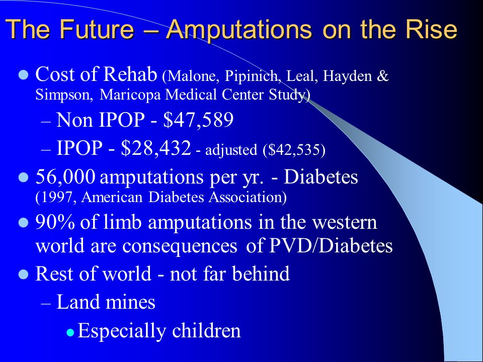 The Future – Amputations on the Rise