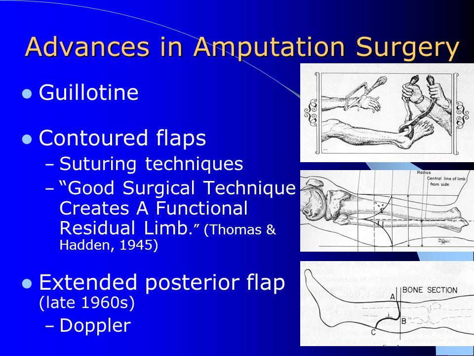 Advances in Amputation Surgery