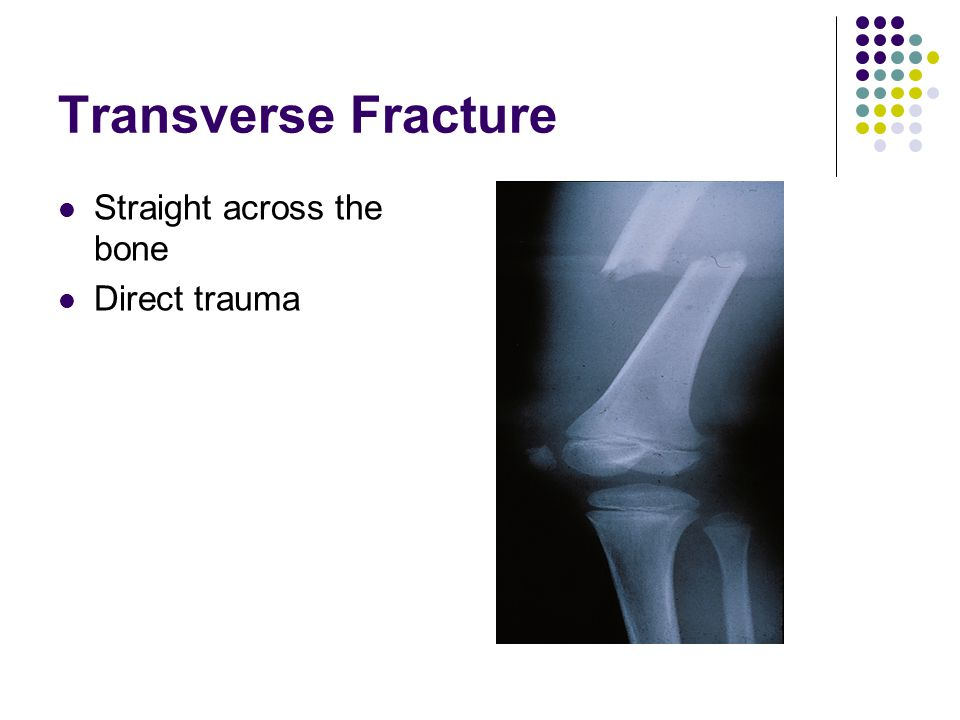 Transverse Fracture Straight across the bone Direct trauma