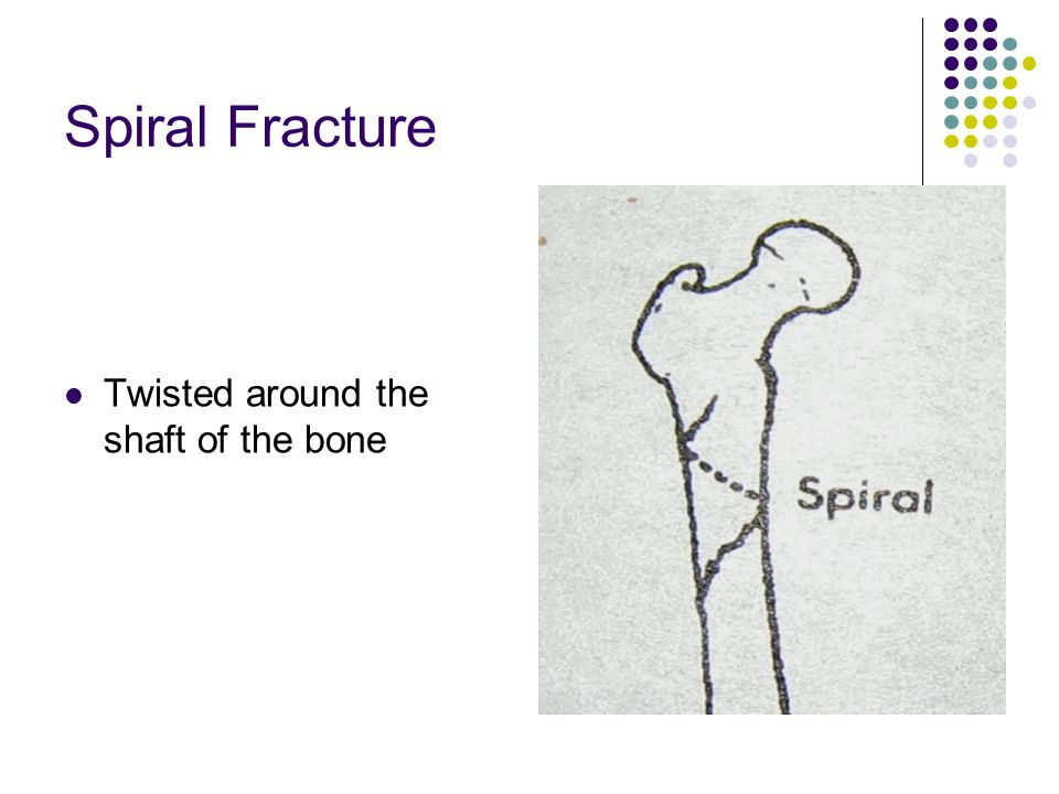 Spiral Fracture Twisted around the shaft of the bone