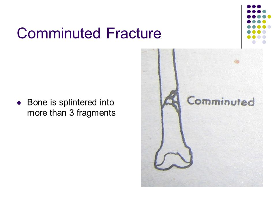 Comminuted Fracture Bone is splintered into more than 3 fragments