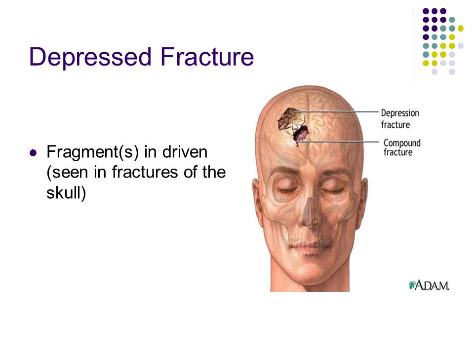 Depressed Fracture Fragment(s) in driven (seen in fractures of the skull)