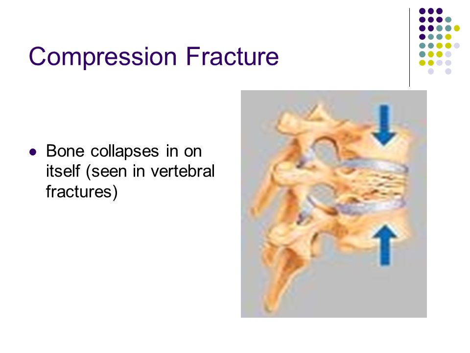 Compression Fracture Bone collapses in on itself (seen in vertebral fractures)