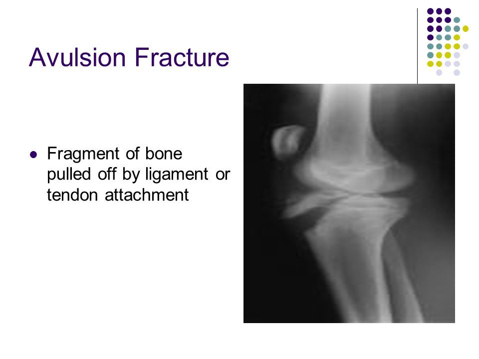 Avulsion Fracture Fragment of bone pulled off by ligament or tendon attachment