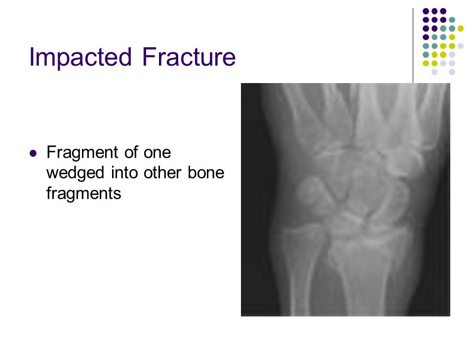 Impacted Fracture Fragment of one wedged into other bone fragments