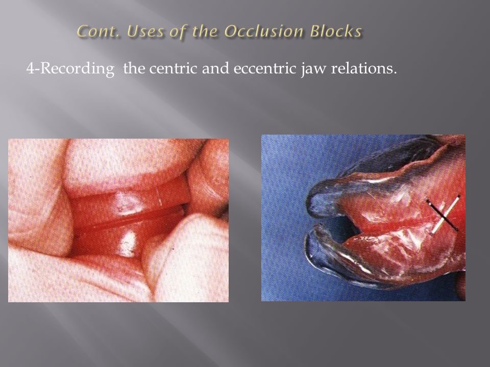 Cont. Uses of the Occlusion Blocks