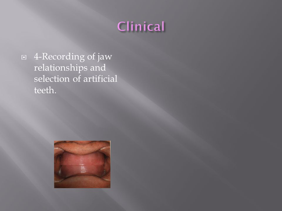 Clinical 4-Recording of jaw relationships and selection of artificial teeth.