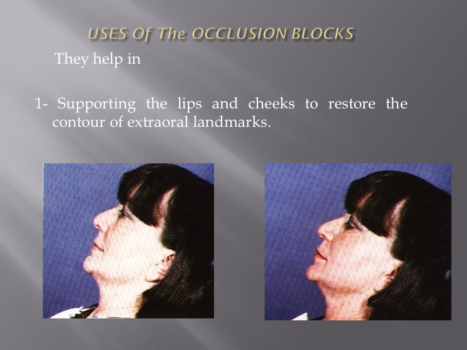 USES Of The OCCLUSION BLOCKS