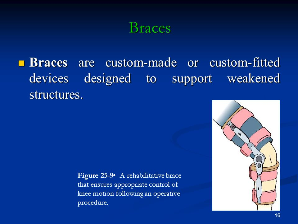 Braces Braces are custom-made or custom-fitted devices designed to support weakened structures.