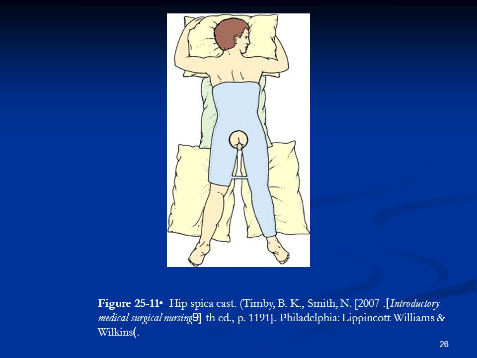 Figure • Hip spica cast. (Timby, B. K. , Smith, N. [2007]