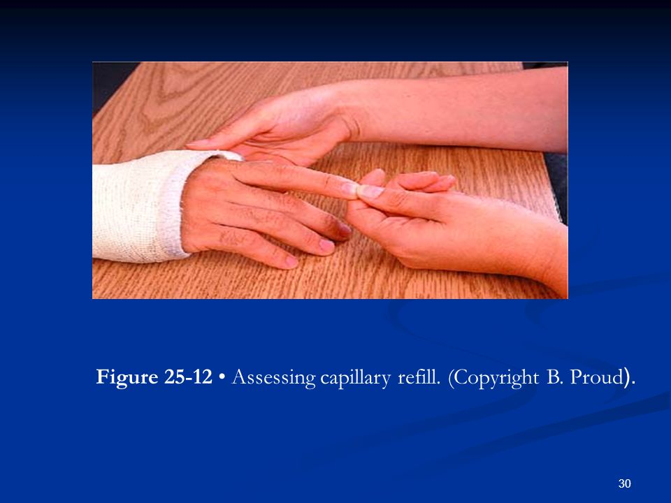 Figure 25-12 • Assessing capillary refill. (Copyright B. Proud.(