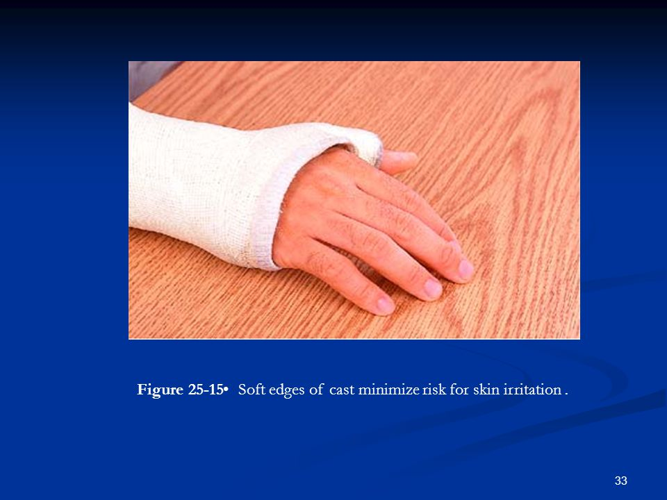 Figure 25-15 • Soft edges of cast minimize risk for skin irritation.