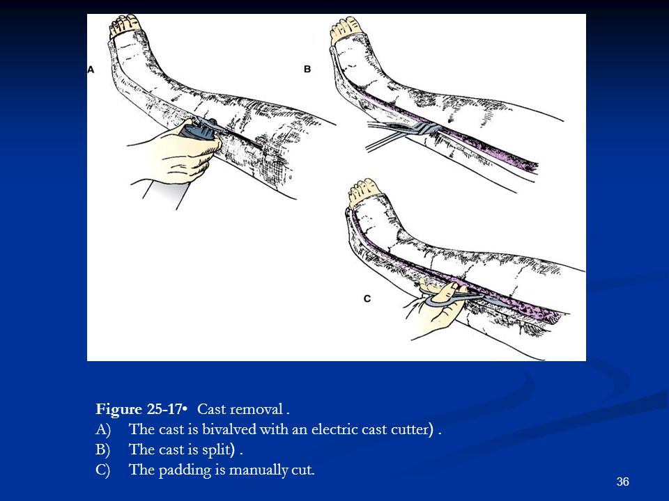 Figure 25-17 • Cast removal. The cast is bivalved with an electric cast cutter. ( The cast is split. (