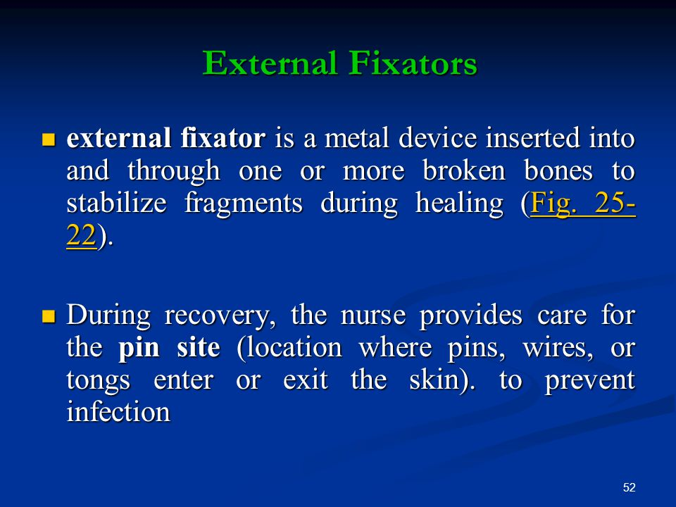 External Fixators