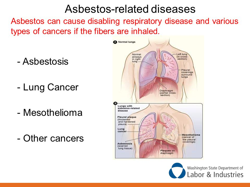 Diagram Of Breathing In Asbestos Fibers : Course outline the following topics will be covered ppt