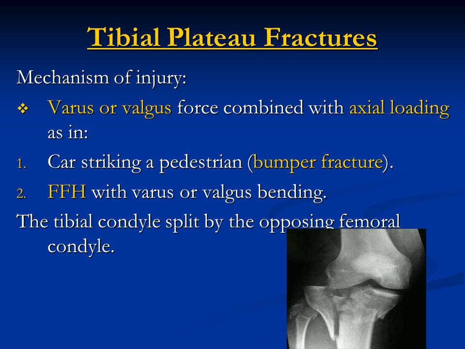 Tibial plateau fractures ppt video online download - Tibial plafond fracture classification ...