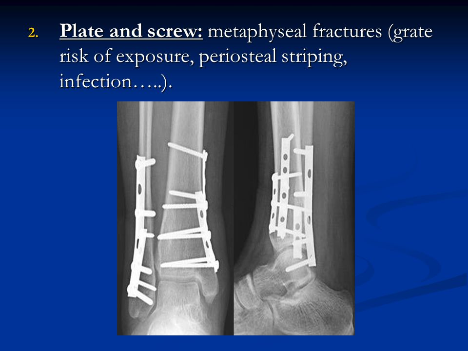 Plate and screw: metaphyseal fractures (grate risk of exposure, periosteal striping, infection…..).