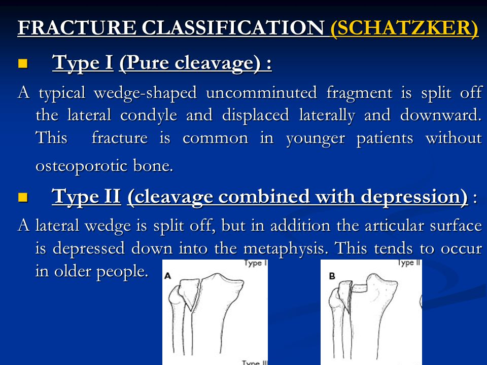 FRACTURE CLASSIFICATION (SCHATZKER) Type I (Pure cleavage) :