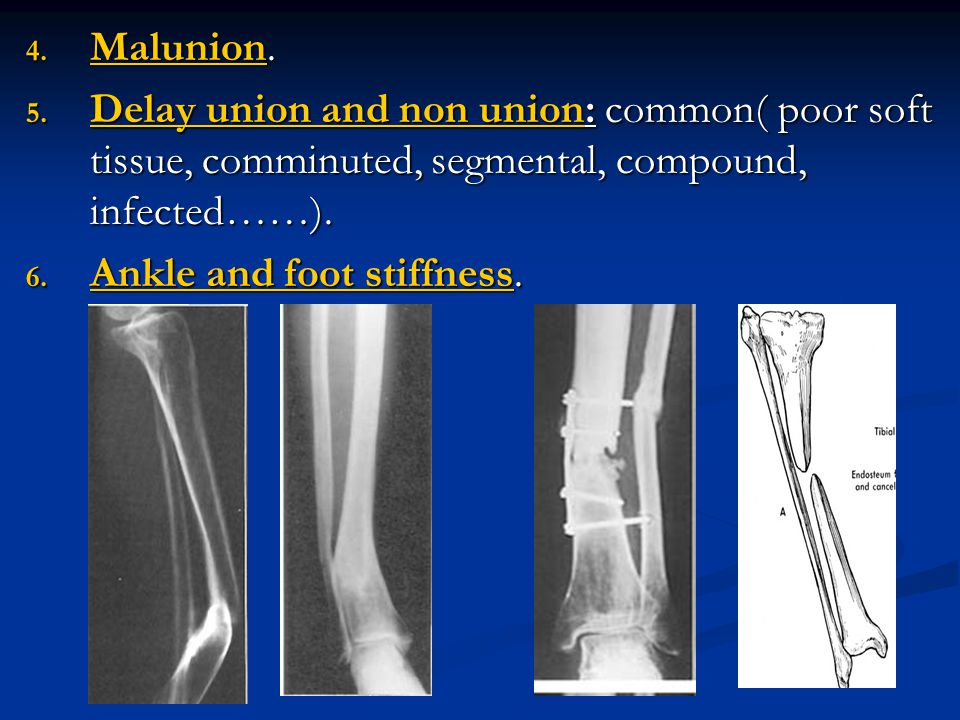 Malunion. Delay union and non union: common( poor soft tissue, comminuted, segmental, compound, infected……).