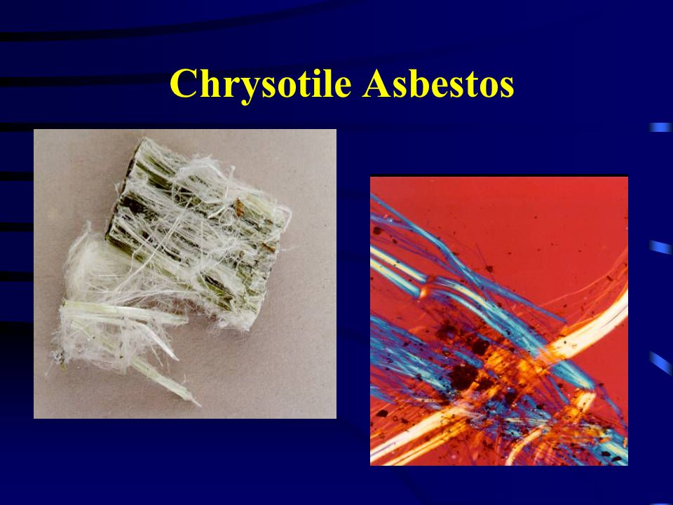 Chrysotile Asbestos Raw form of chrysotile and how it is seen under a micorscope. Wavy.