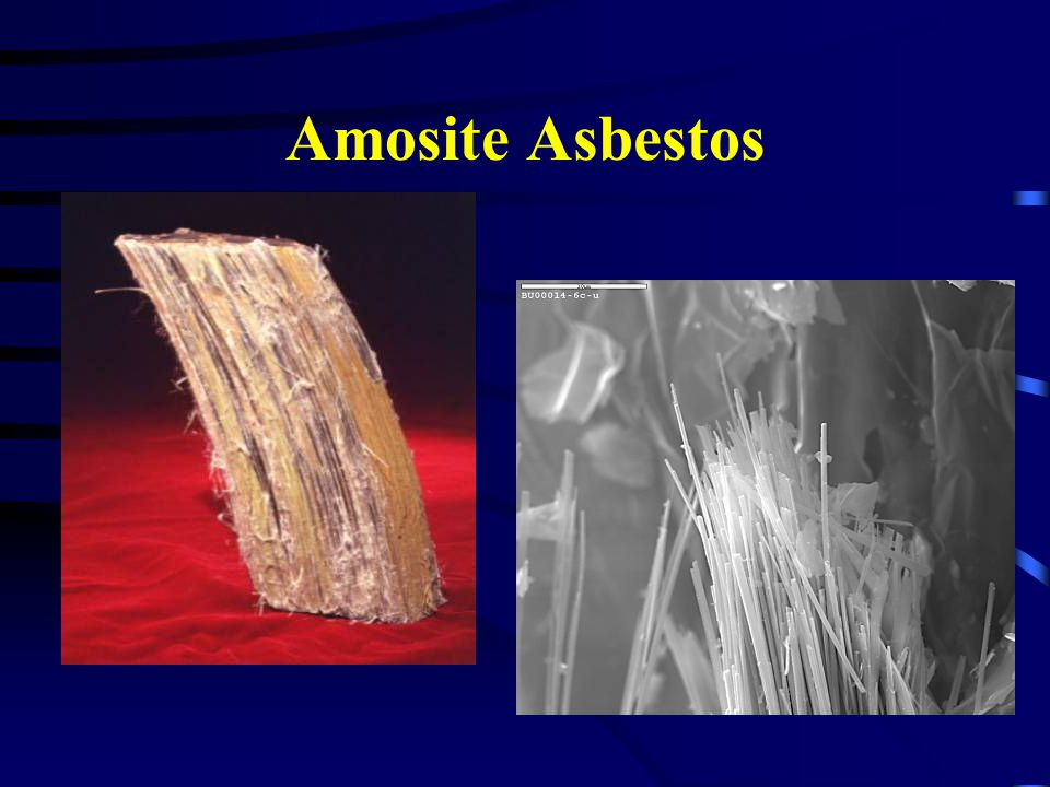 Amosite Asbestos Raw form of amosite and how it is seen under the microscope.