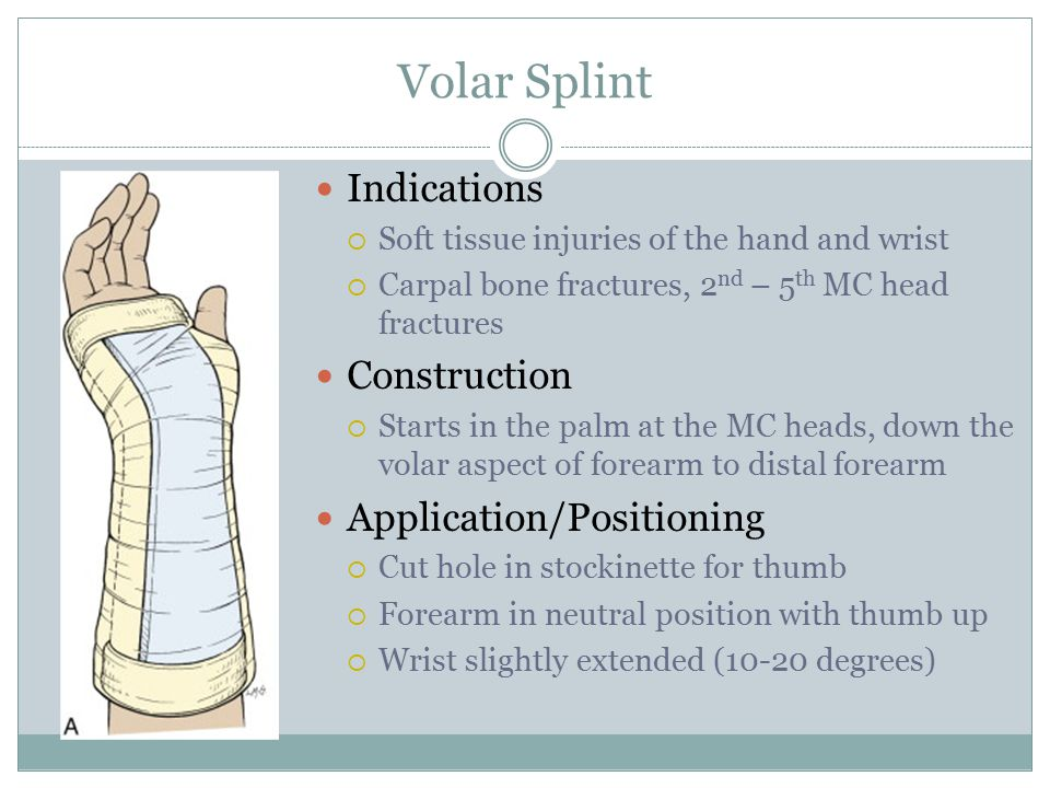 Volar Splint Indications Construction Application/Positioning