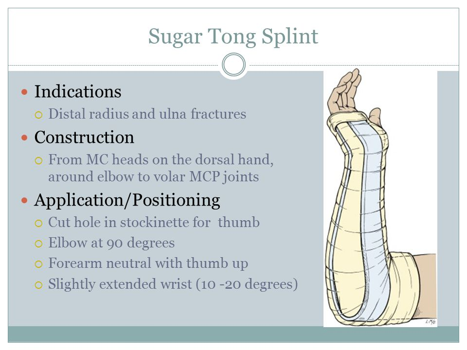 Sugar Tong Splint Indications Construction Application/Positioning