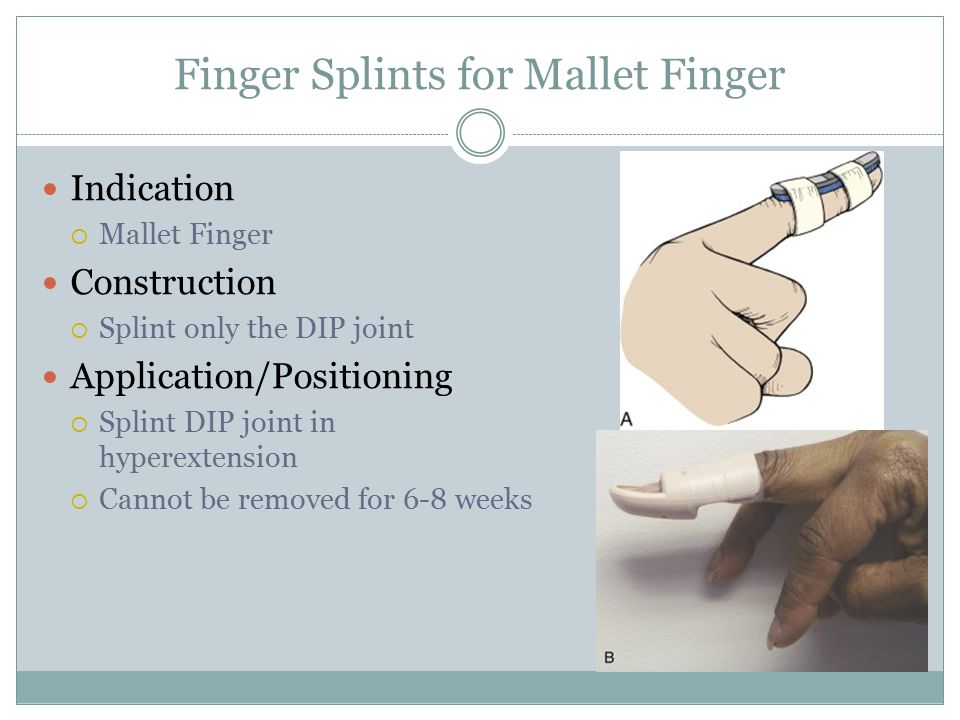 Finger Splints for Mallet Finger