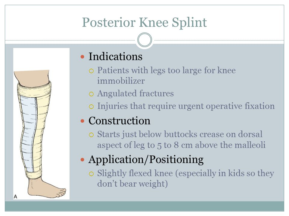 Posterior Knee Splint Indications Construction Application/Positioning