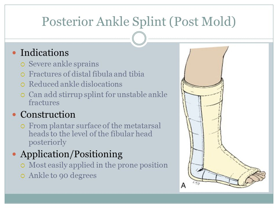 Posterior Ankle Splint (Post Mold)
