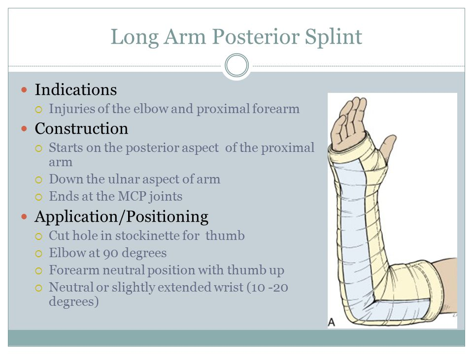 Long Arm Posterior Splint