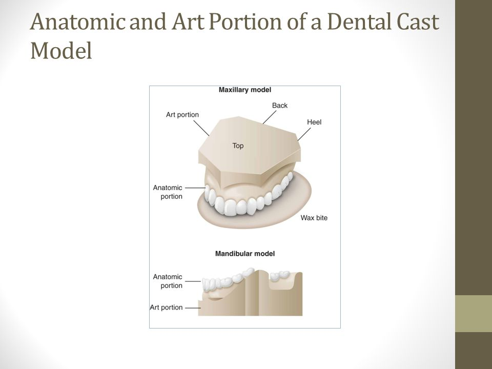 Anatomic and Art Portion of a Dental Cast Model