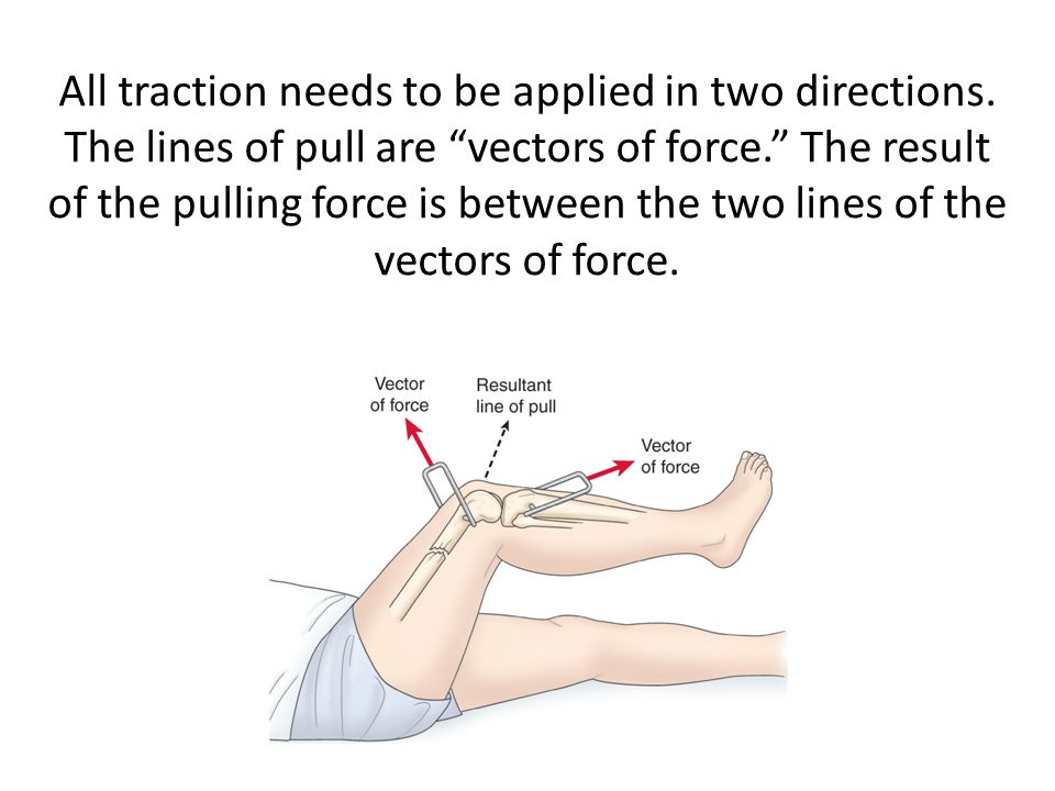 All traction needs to be applied in two directions