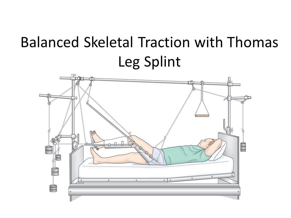 Balanced Skeletal Traction with Thomas Leg Splint
