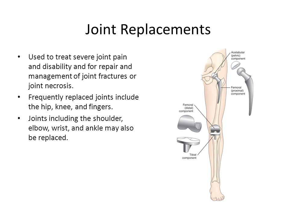 Joint Replacements Used to treat severe joint pain and disability and for repair and management of joint fractures or joint necrosis.