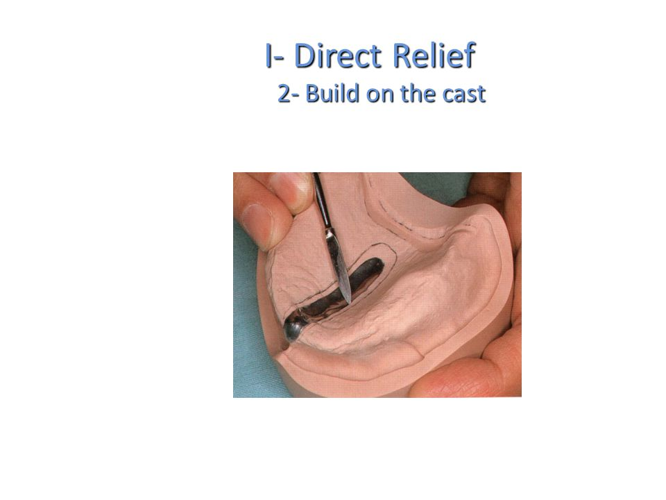 I- Direct Relief 2- Build on the cast