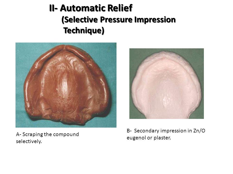 II- Automatic Relief (Selective Pressure Impression Technique)