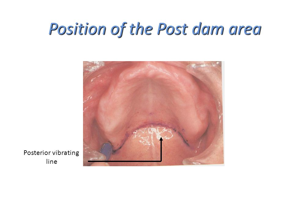 Position of the Post dam area