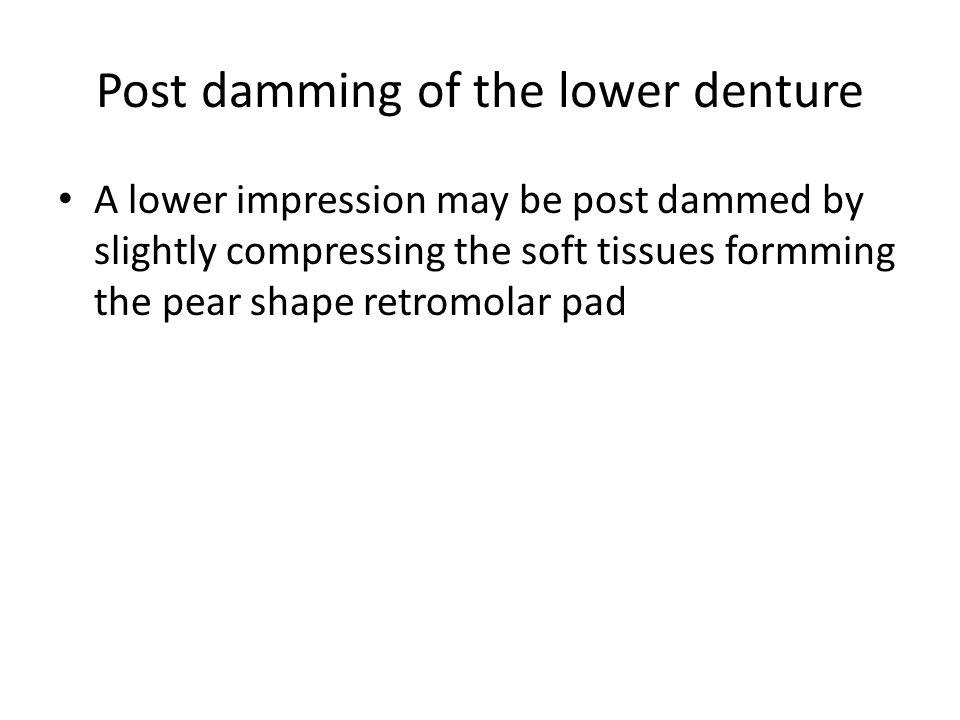 Post damming of the lower denture