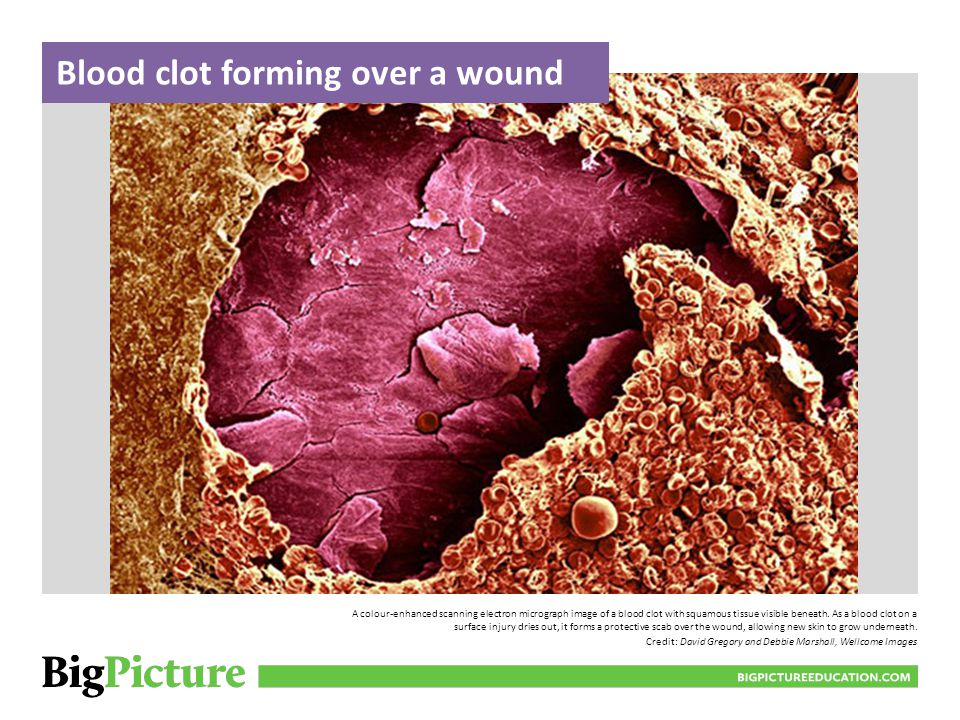 Blood clot forming over a wound