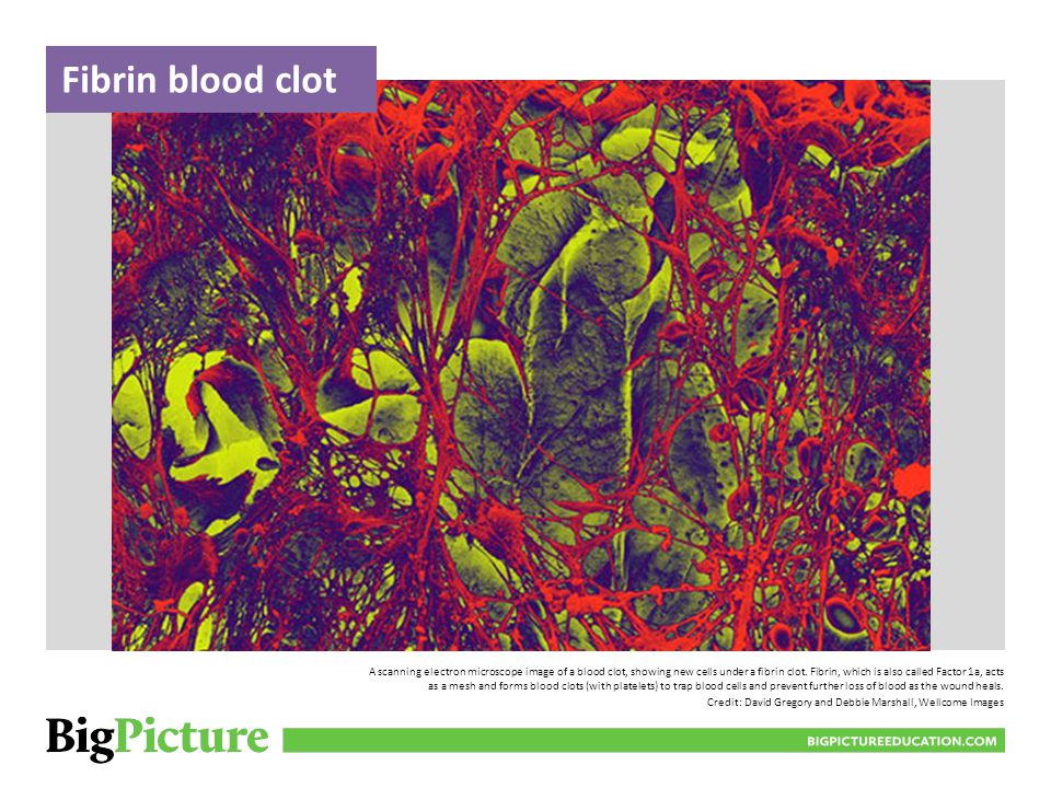 Fibrin blood clot
